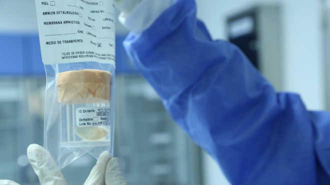 Banco de Tejidos del Instituto Distrital de Ciencia, Biotecnolog�a e Innovaci�n en Salud