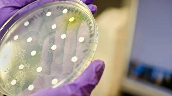 El SAAP-148 elimina las bacterias que crecen en biopel�culas de cultivo